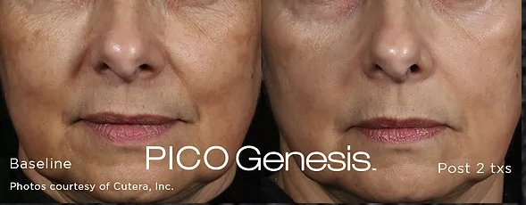 Enlighten-Pico-Before-After2