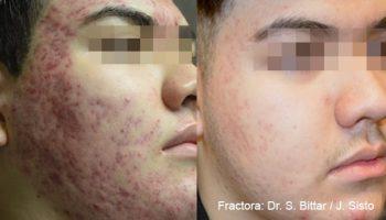 skin-tightening-7