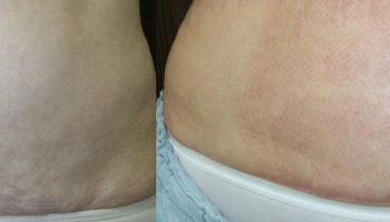 skin-tightening8